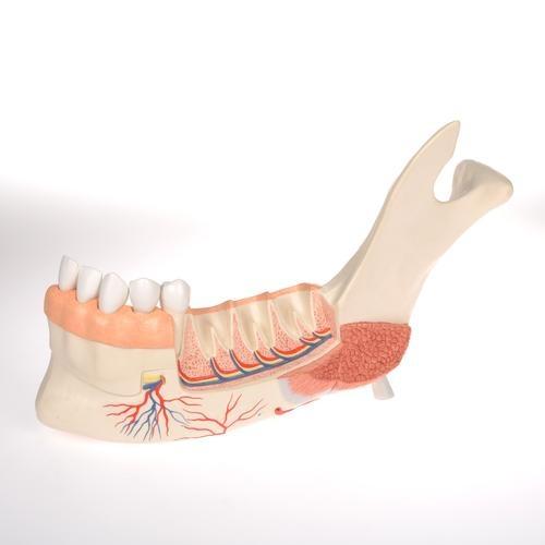 Unterkieferhälfte mit 8 kariösen Zähnen, 19-teilig