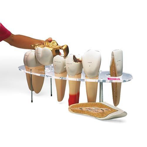 Zahnersatz-Modell, 7-teilig, 10-fache Größe - Englisch