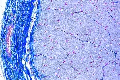 Mikropräparat - Sehnerv (Nervus opticus) des Menschen, quer