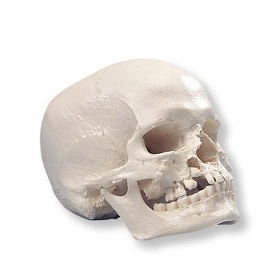 Schädel mit Kiefer- und Gaumenspalte