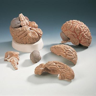 Gehirn mit Arterien, 5-teilig