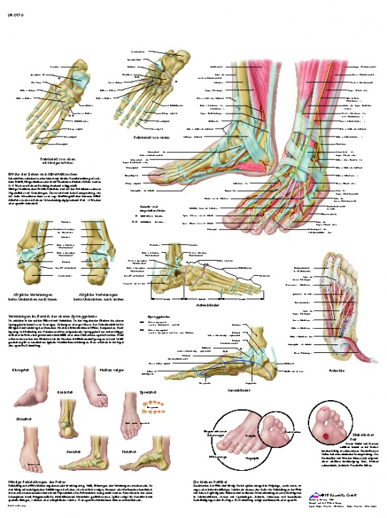 Anatomische Lehrtafel, Fuß und Fußgelenke - Anatomie und Pathologie