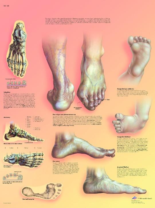 Anatomische Lehrtafel, Fehlstellungen der Füße