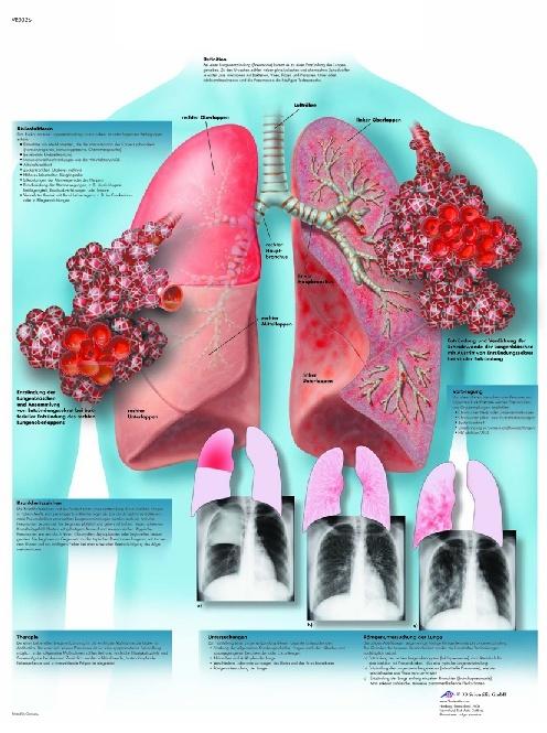 Anatomische Lehrtafel, Lungenentzündung