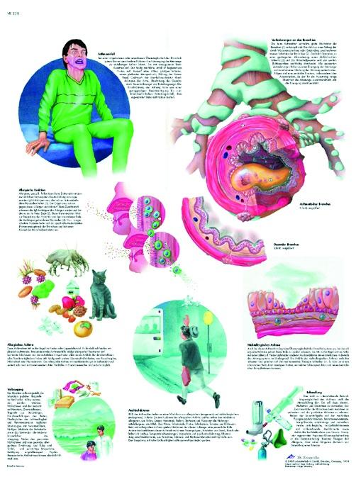 Anatomische Lehrtafel, Asthma