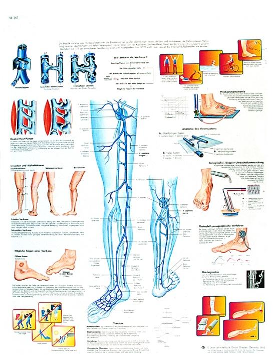 Anatomische Lehrtafel, Krampfadern, Varikose