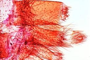 Mikropräparat - Spinne, Spinnwarzen total