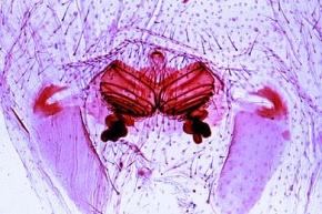 Mikropräparat - Spinne, Epigyne des Weibchens, total *
