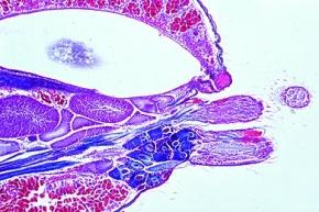 Mikropräparat - Spinne, Abdomen längs, mit Spinndrüsen und Spinnwarzen