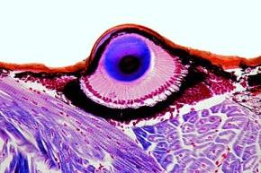 Mikropräparat - Salticus, Springspinne, Cephalothorax mit Teleskopaugen *
