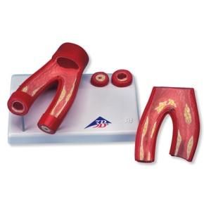 Arteriosklerose Modell, mit Querschnitt der Arterie, 2-teilig