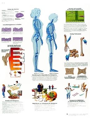 Anatomische Lehrtafel, Osteoporose